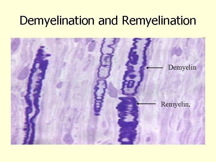 Demyelination and Remyelination Demyelin Remyelin.