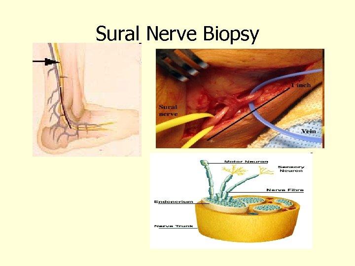 Sural Nerve Biopsy