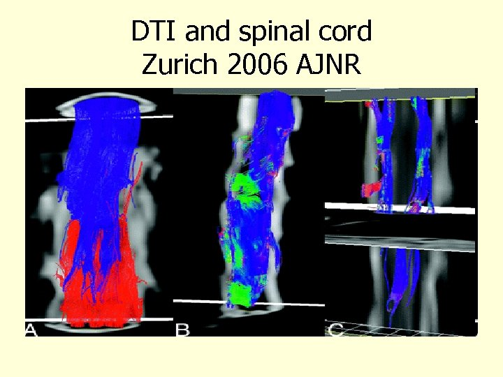 DTI and spinal cord Zurich 2006 AJNR