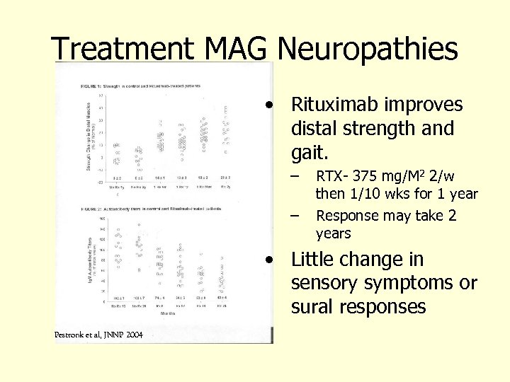Treatment MAG Neuropathies • Rituximab improves distal strength and gait. – – RTX- 375