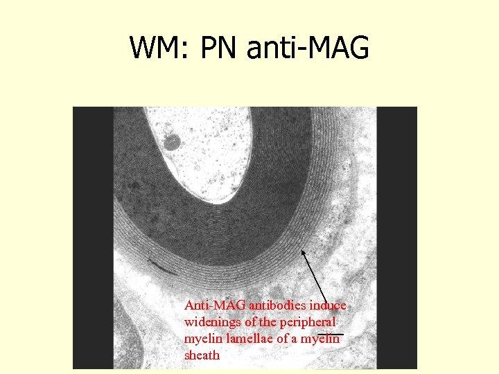 WM: PN anti-MAG Anti-MAG antibodies induce widenings of the peripheral myelin lamellae of a