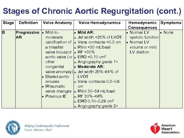 Stages of Chronic Aortic Regurgitation (cont. ) Stage B Definition Valve Anatomy Progressive AR