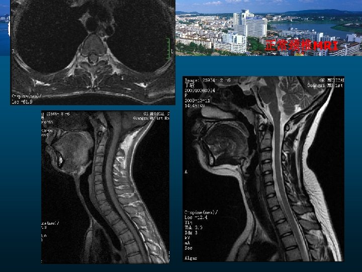 正常颈椎MRI