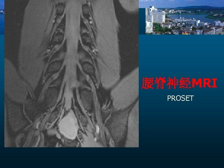腰脊神经MRI PROSET
