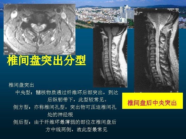 椎间盘突出分型 椎间盘突出 中央型:髓核物质通过纤维环后部突出,到达 后纵韧带下,此型较常见。 侧方型:亦称椎间孔型,突出物可压迫椎间孔 处的神经根 侧后型:由于纤维环最薄弱的部位在椎间盘后 方中线两侧,故此型最常见 椎间盘后中央突出