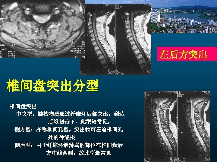 左后方突出 椎间盘突出分型 椎间盘突出 中央型:髓核物质通过纤维环后部突出,到达 后纵韧带下,此型较常见。 侧方型:亦称椎间孔型,突出物可压迫椎间孔 处的神经根 侧后型:由于纤维环最薄弱的部位在椎间盘后 方中线两侧,故此型最常见