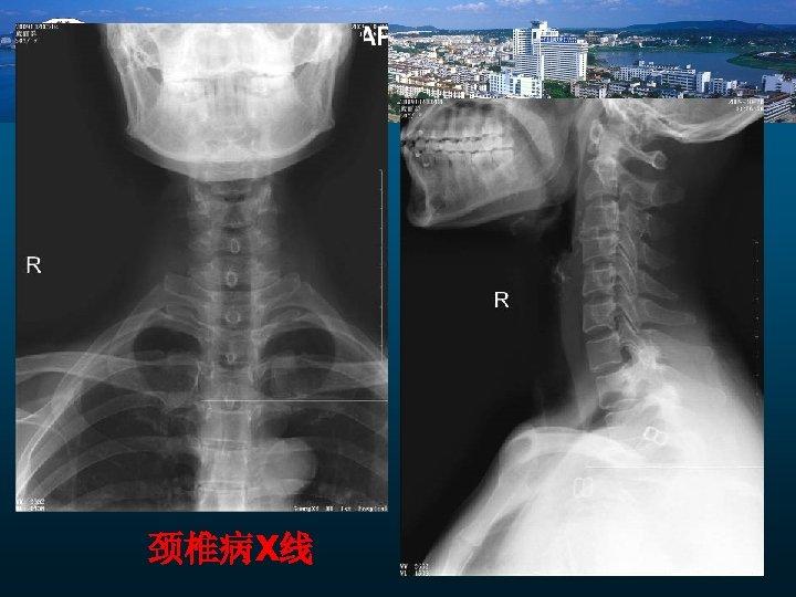 颈椎病X线