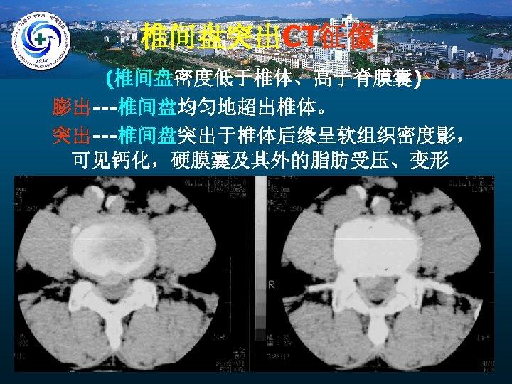 椎间盘突出CT征像 (椎间盘密度低于椎体、高于脊膜囊) 膨出---椎间盘均匀地超出椎体。 突出---椎间盘突出于椎体后缘呈软组织密度影, 可见钙化,硬膜囊及其外的脂肪受压、变形