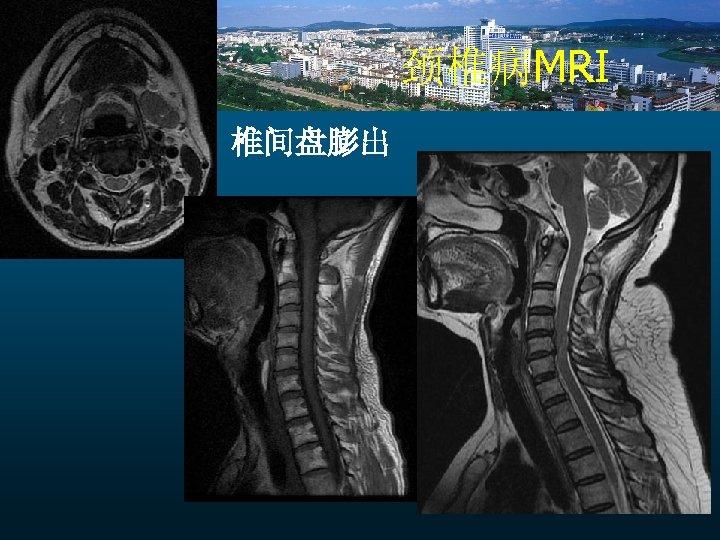 颈椎病MRI 椎间盘膨出