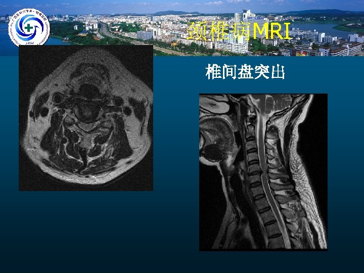 颈椎病MRI 椎间盘突出