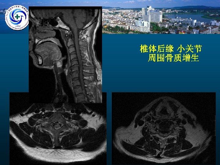 椎体后缘 小关节 周围骨质增生