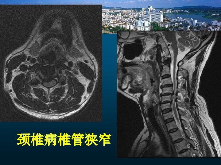 颈椎病椎管狭窄