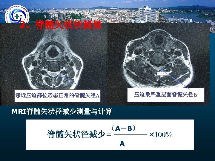 2、脊髓矢状径测量 压迫最严重层面脊髓矢径B 邻近压迫部位形态正常的脊髓矢径A MRI脊髓矢状径减少测量与计算 (A-B) 脊髓矢状径减少= A × 100%