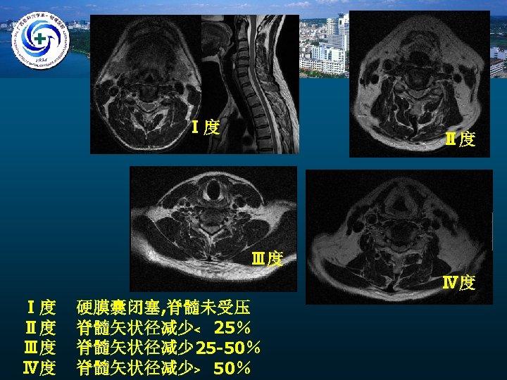 Ⅰ度 Ⅱ度 Ⅲ度 Ⅳ度 硬膜囊闭塞, 脊髓未受压 脊髓矢状径减少﹤ 25% 脊髓矢状径减少 25 -50% 脊髓矢状径减少﹥ 50%