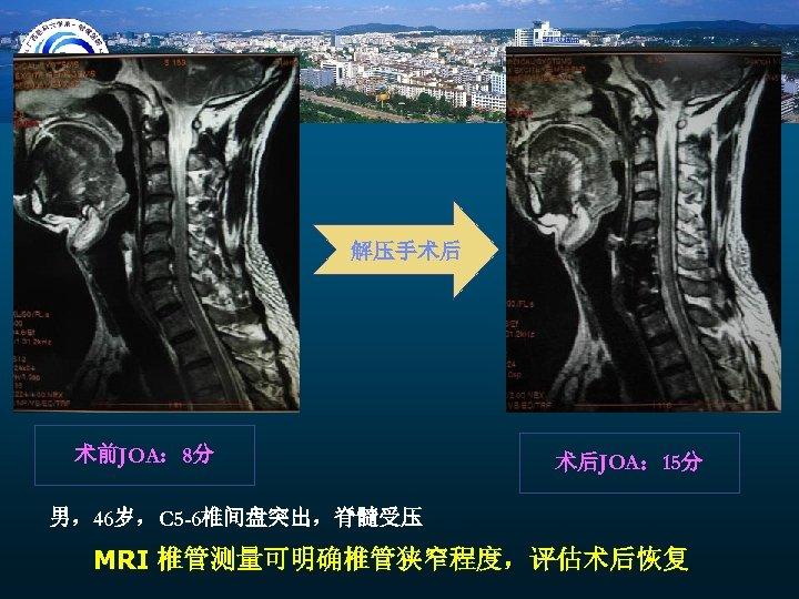 解压手术后 术前JOA: 8分 术后JOA: 15分 男,46岁,C 5 -6椎间盘突出,脊髓受压 MRI 椎管测量可明确椎管狭窄程度,评估术后恢复