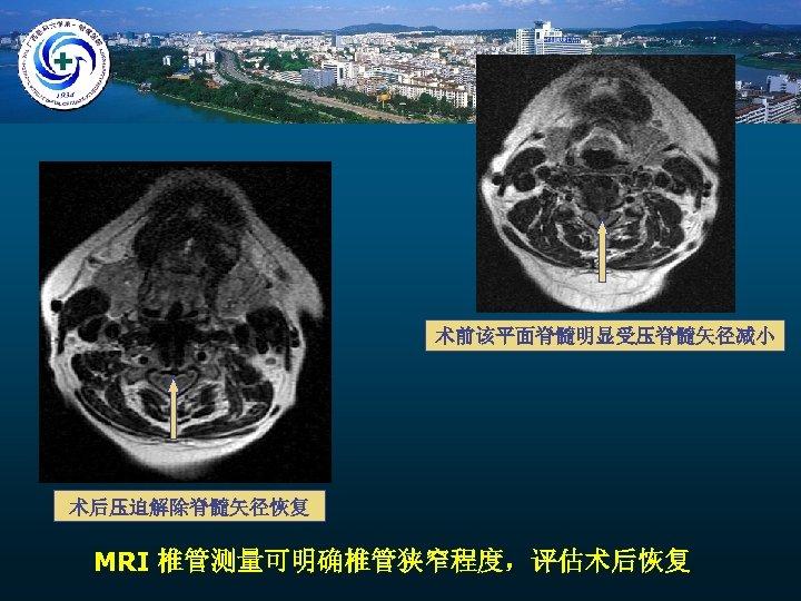 术前该平面脊髓明显受压脊髓矢径减小 术后压迫解除脊髓矢径恢复 MRI 椎管测量可明确椎管狭窄程度,评估术后恢复