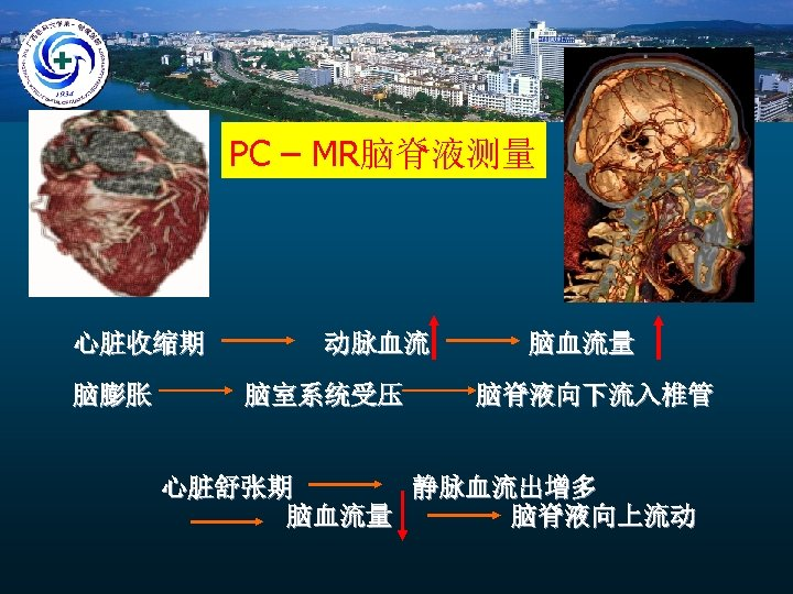 PC – MR脑脊液测量 心脏收缩期 脑膨胀 动脉血流 脑室系统受压 脑血流量 脑脊液向下流入椎管 心脏舒张期 静脉血流出增多 脑血流量 脑脊液向上流动