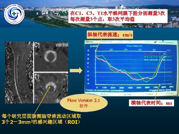在C 1、C 3、T 1水平蛛网膜下腔分别测量 3次 每次测量 3个点,取 3次平均值 纵轴代表流速;cm/s Flow Version 3. 1 软件
