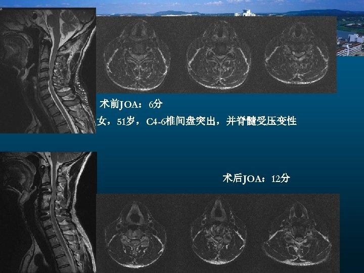 术前JOA: 6分 女,51岁,C 4 -6椎间盘突出,并脊髓受压变性 术后JOA: 12分