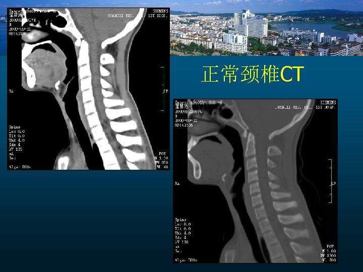 正常颈椎CT