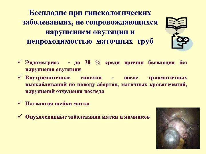 Бесплодие при гинекологических заболеваниях, не сопровождающихся нарушением овуляции и непроходимостью маточных труб ü Эндометриоз