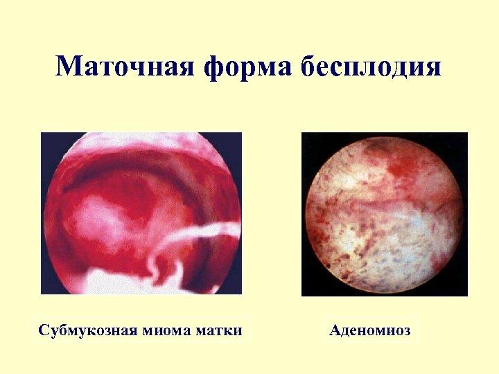 Маточная форма бесплодия Субмукозная миома матки Аденомиоз