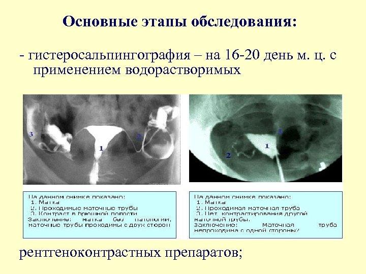 Основные этапы обследования: - гистеросальпингография – на 16 -20 день м. ц. с применением
