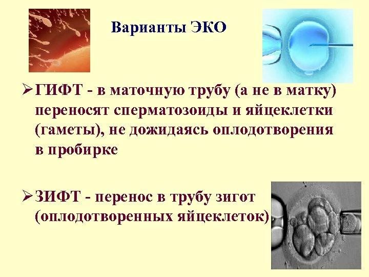Варианты ЭКО Ø ГИФТ - в маточную трубу (а не в матку) переносят сперматозоиды
