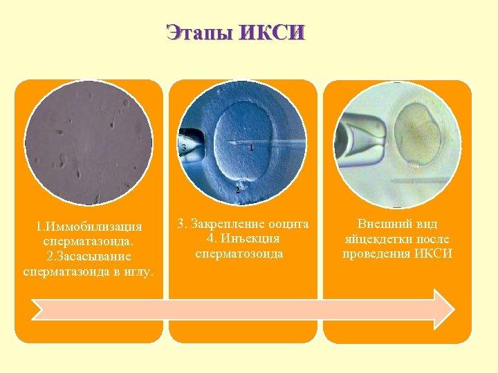 Этапы ИКСИ 1. Иммобилизация сперматазоида. 2. Засасывание сперматазоида в иглу. 3. Закрепление ооцита 4.