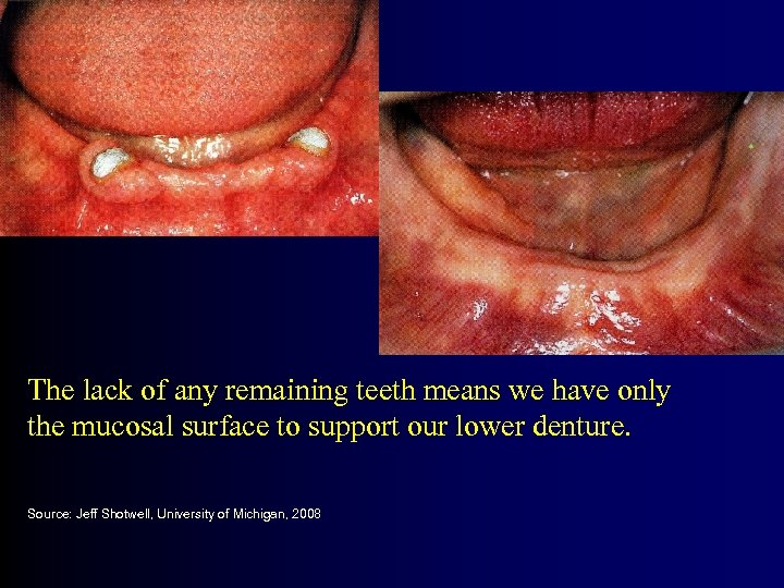 The lack of any remaining teeth means we have only the mucosal surface to
