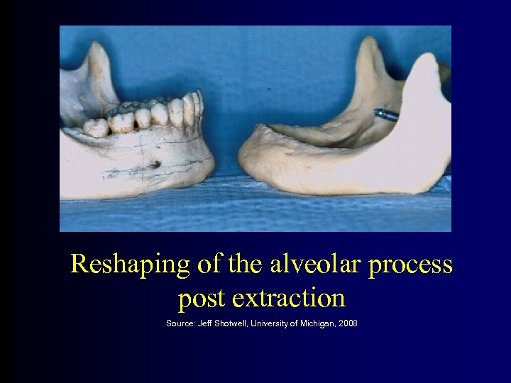 Reshaping of the alveolar process post extraction Source: Jeff Shotwell, University of Michigan, 2008
