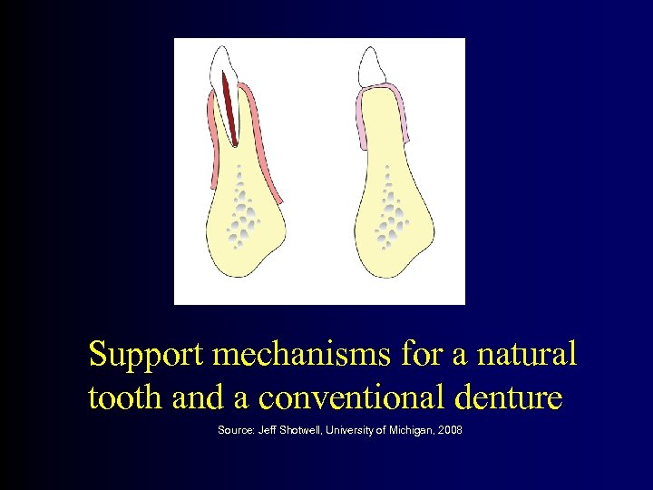 Support mechanisms for a natural tooth and a conventional denture Source: Jeff Shotwell, University