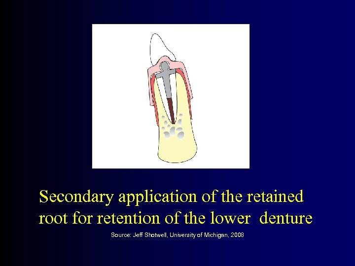 Secondary application of the retained root for retention of the lower denture Source: Jeff