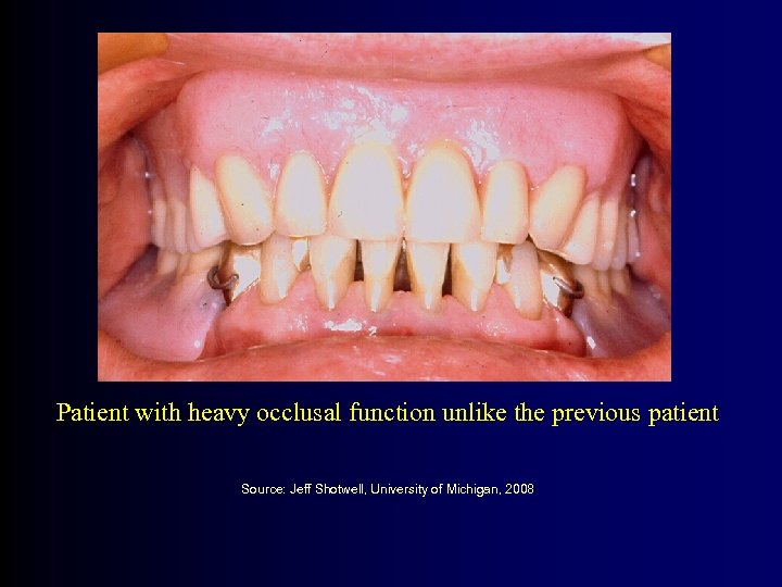 Patient with heavy occlusal function unlike the previous patient Source: Jeff Shotwell, University of