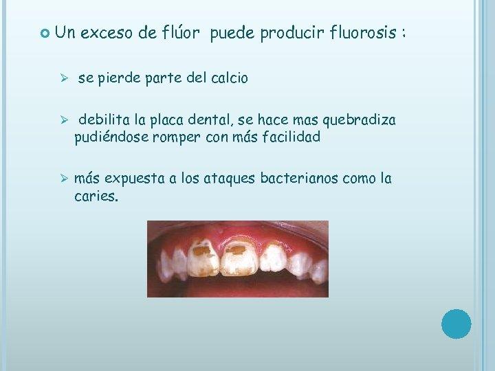 Un exceso de flúor puede producir fluorosis : Ø se pierde parte del