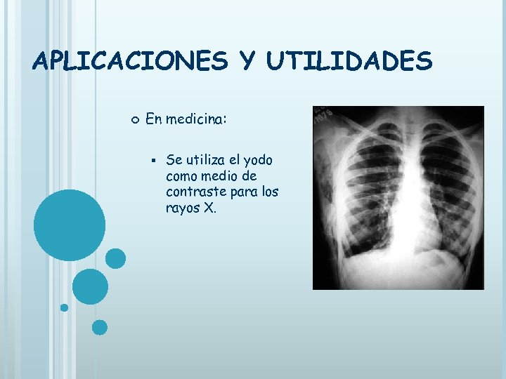 APLICACIONES Y UTILIDADES En medicina: § Se utiliza el yodo como medio de contraste