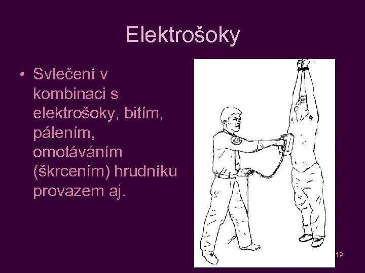 Elektrošoky • Svlečení v kombinaci s elektrošoky, bitím, pálením, omotáváním (škrcením) hrudníku provazem aj.