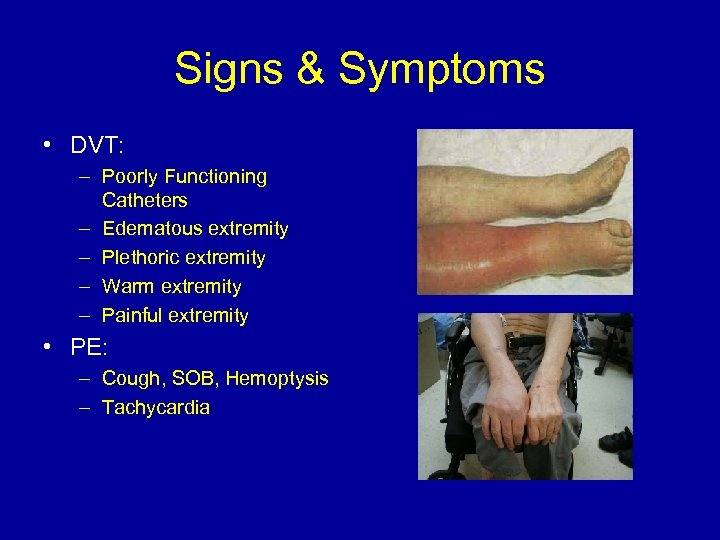 Signs & Symptoms • DVT: – Poorly Functioning Catheters – Edematous extremity – Plethoric