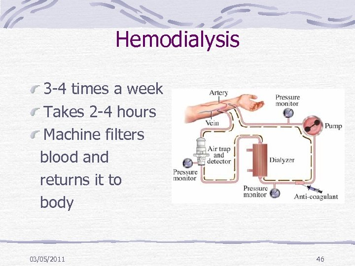 Hemodialysis 3 -4 times a week Takes 2 -4 hours Machine filters blood and