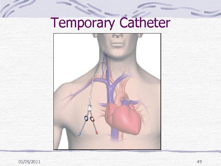 Temporary Catheter 03/05/2011 49
