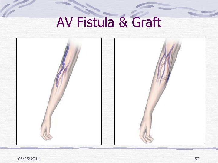 AV Fistula & Graft 03/05/2011 50