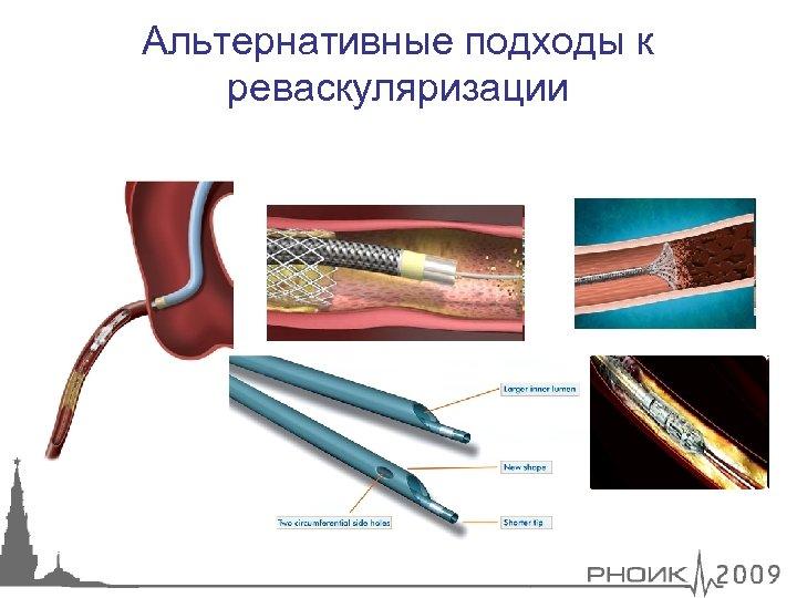 Альтернативные подходы к реваскуляризации