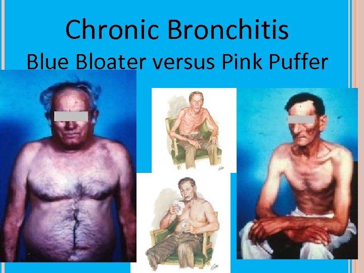 Chronic Bronchitis Blue Bloater versus Pink Puffer