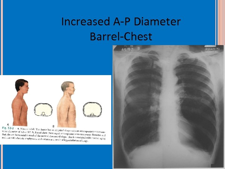 Increased A-P Diameter Barrel-Chest