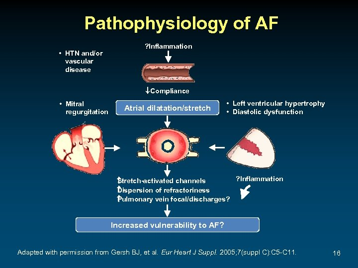 Pathophysiology of AF • HTN and/or vascular disease ? Inflammation ¯Compliance • Mitral regurgitation