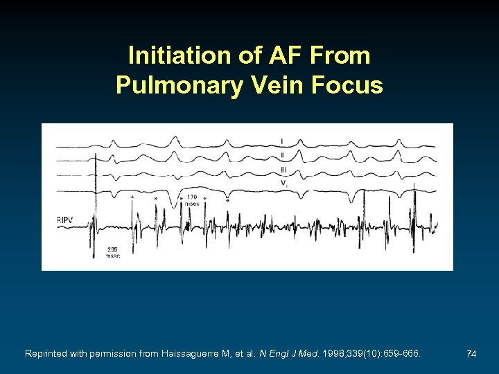 Initiation of AF From Pulmonary Vein Focus Reprinted with permission from Haissaguerre M, et