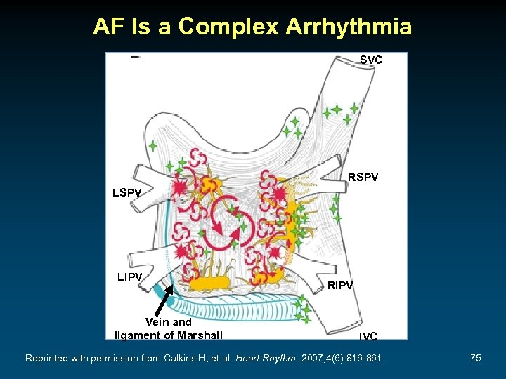AF Is a Complex Arrhythmia SVC RSPV LIPV Vein and ligament of Marshall RIPV