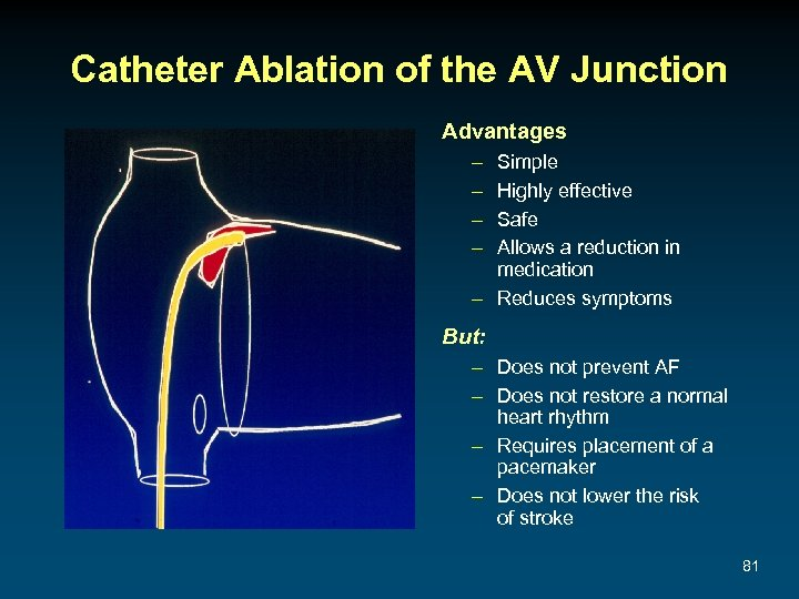 Catheter Ablation of the AV Junction Advantages – – Simple Highly effective Safe Allows