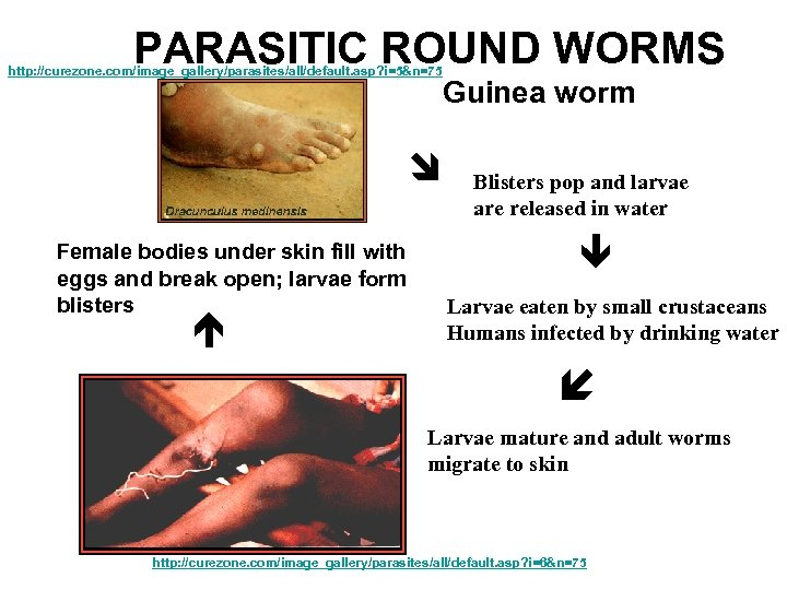 PARASITIC ROUND WORMS http: //curezone. com/image_gallery/parasites/all/default. asp? i=5&n=75 Female bodies under skin fill with