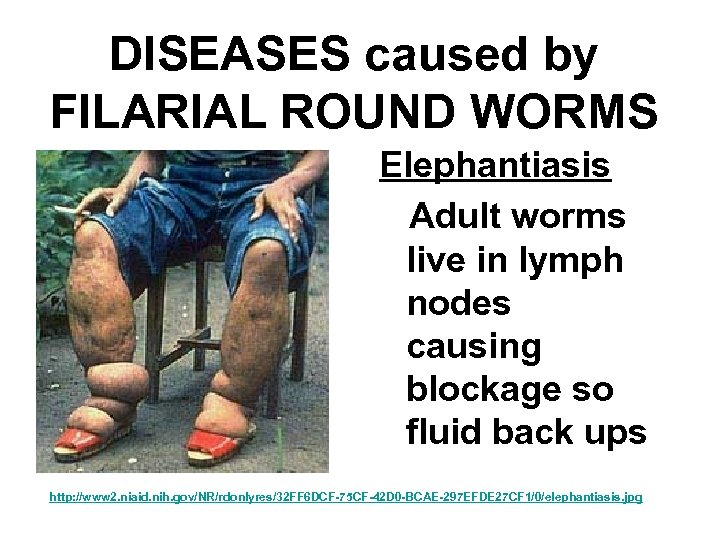 DISEASES caused by FILARIAL ROUND WORMS Elephantiasis Adult worms live in lymph nodes causing